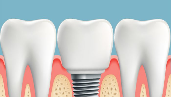 info about dental implants